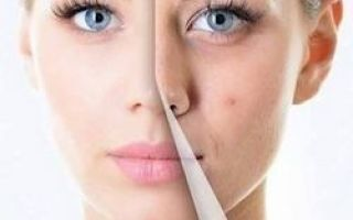 16 modalități ușoare de a scăpa de cicatrici după acnee