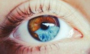 6 coisas que podem mudar a cor dos seus olhos