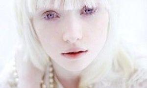 24 faktů, o kterých jste nevěděli o albinismu