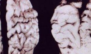 Znany psychiatra: w jaki sposób alkohol wpływa na mózg