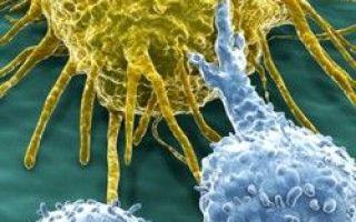 Oamenii de știință au găsit un nou mod de a trata cancerul cu o singură lovitură