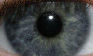 O nouă procedură va transforma ochii tăi căprui în albastru