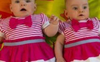 V Irsku se narodily dvojčata s rozdílem 87 dní