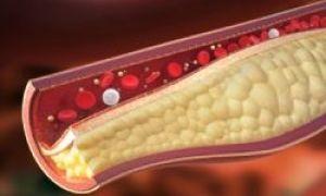 25 de lucruri pe care trebuie să le știi despre colesterol